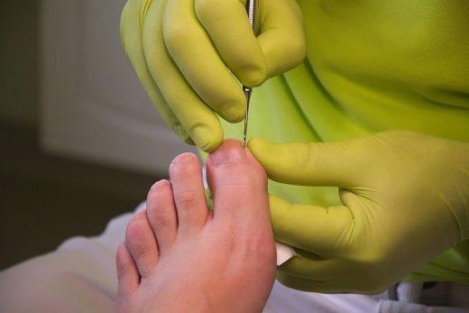 Podologia – jak dbać o stopy?
